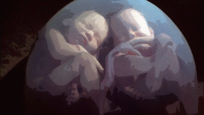 baarmoeder tweeling.png